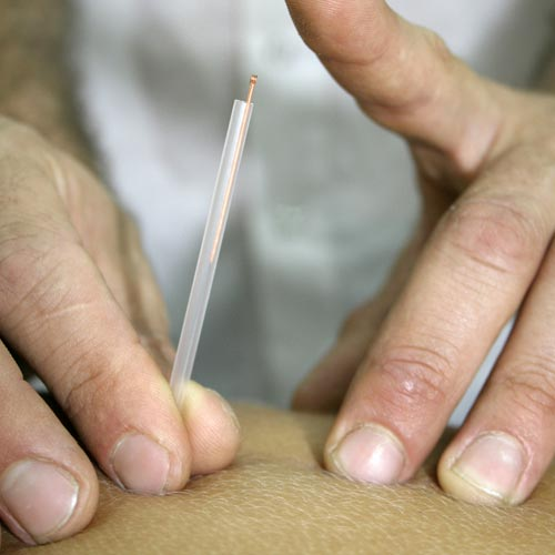 Acupuncture | Clinique Synergek | Montréal (Rosemont - Vieux-Montréal)